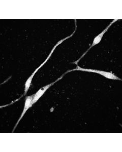 iPS-derived cortical neurons; ICC using anti-beta-Tuj